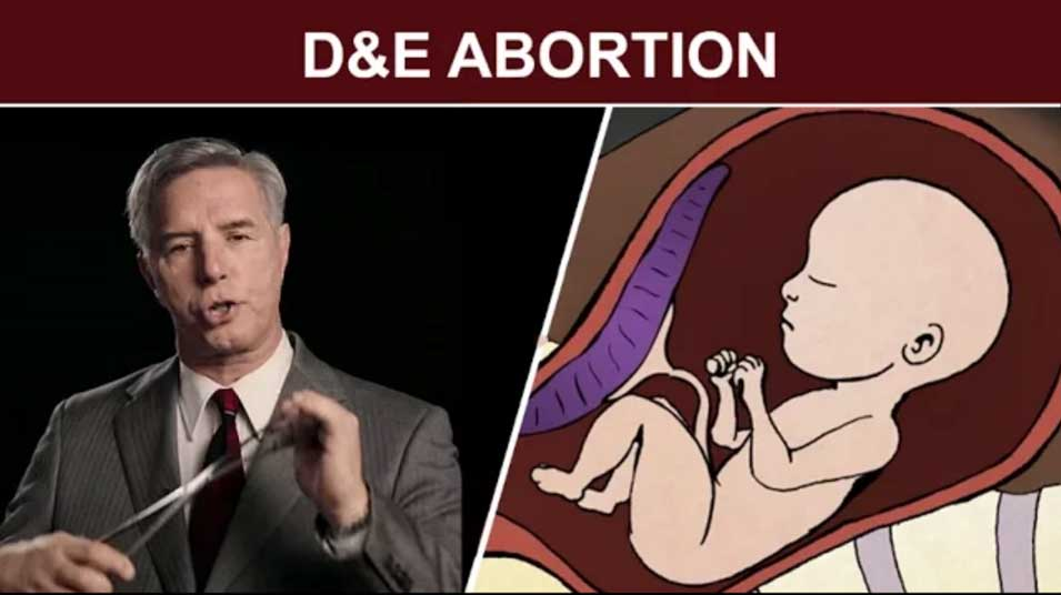 2nd Trimester Surgical Abortion: Dilation and Evacuation (D & E)